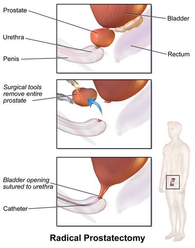 Prosztata adenoma bump