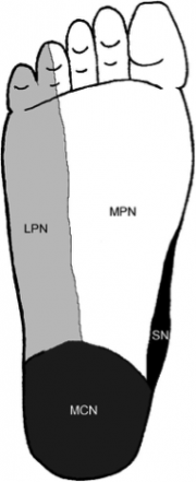 Fig. 2 Cutaneus innervation of the sole of the right foot (2)
