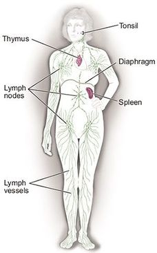 Lymphoma Lymph Node Diagram.jpg
