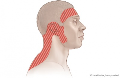 Tension Type Headache Physiopedia